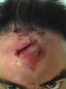 That's gonna leave a mark.  This dude took shrapnel TO HIS FACE when he shot up some tannerite.